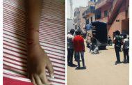थेरगावमध्ये भटक्या कुत्र्यांच्या हल्ल्यात ८ वर्षीय मुलगा जखमी; तातडीने कुत्र्यांचा बंदोबस्त करण्याची थेरगाव सोशल फाऊंडेशनची मागणी
